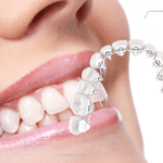 aparat dentar lingual
