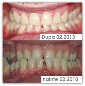 Un zâmbet sănătos nu are vârstă: tratamentul ortodontic vs tratamentul de chirurgie ortognată