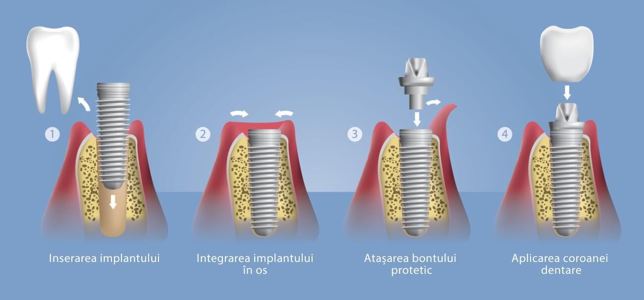 implantologie dentara bucuresti