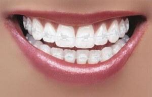 aparat dentar safir bucuresti
