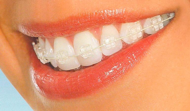 aparat dentar bucuresti