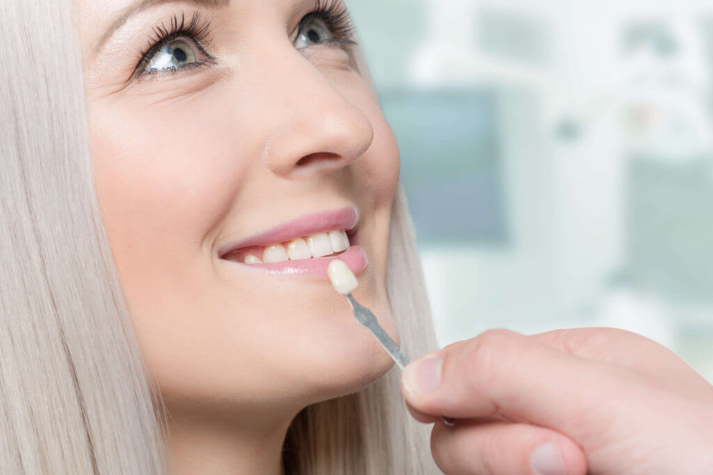 fatete dentare bucuresti