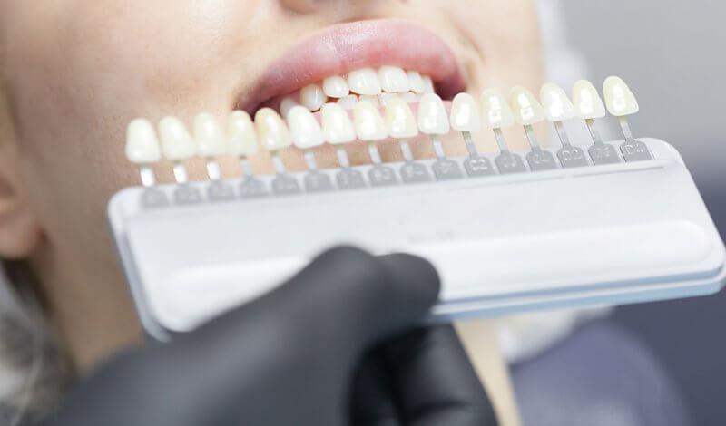 albire dentara bucuresti