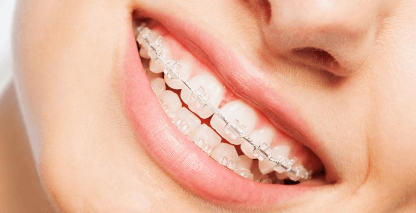 cat costa un aparat dentar