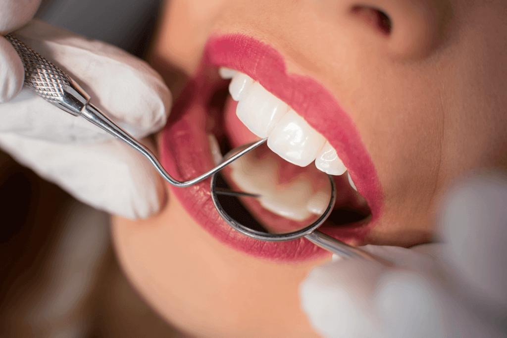 tartru dentar
