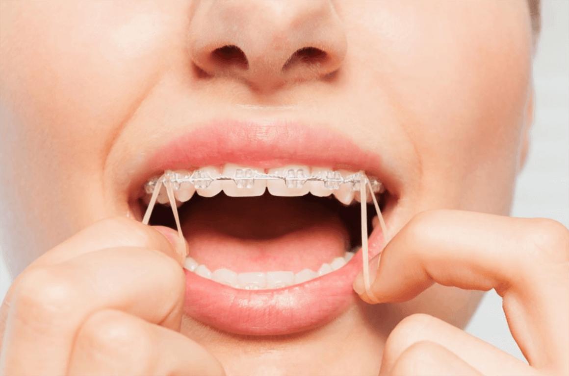 elastice aparat dentar