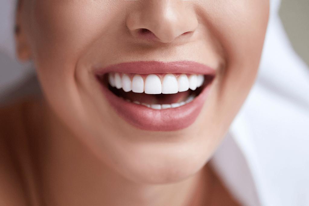 cat costa fetetele dentare